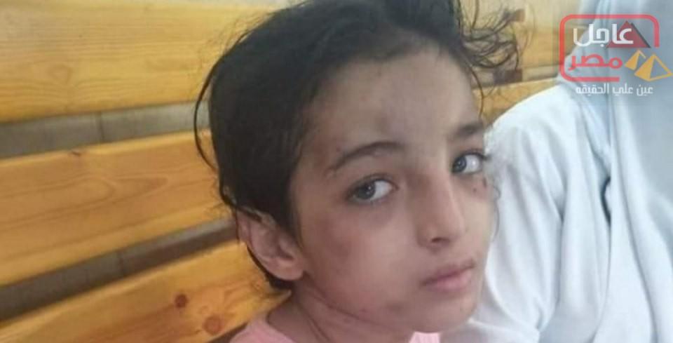 صورة حبس أب وزوجته بتهمة تعذيب طفلة بالكي بالنار لمدة شهرين