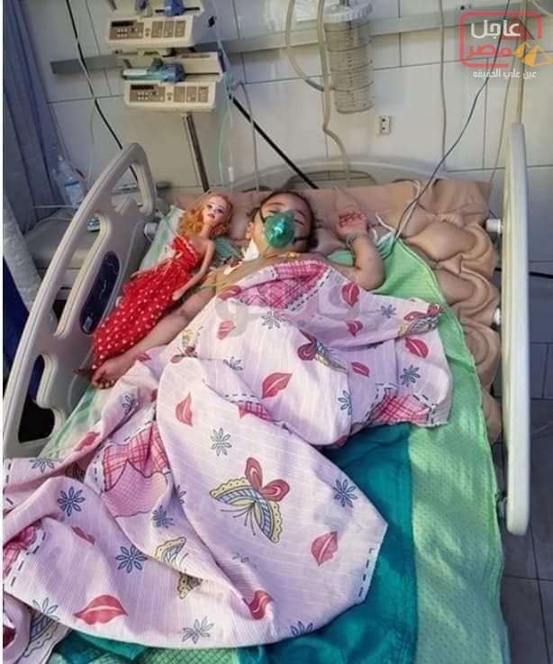 """صورة وفاة الطفلة """"جنة"""" ضحية تعذيب جدتها ب الدقهلية متأثرة بإصاباتها"""