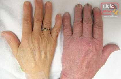 صورة فقر الدم الخبيث.. أسباب وأعراض